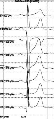 Запись электрокардиосигнала с разрешением 1 мкВ