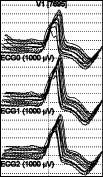 Оценка формы QRS-комплекса